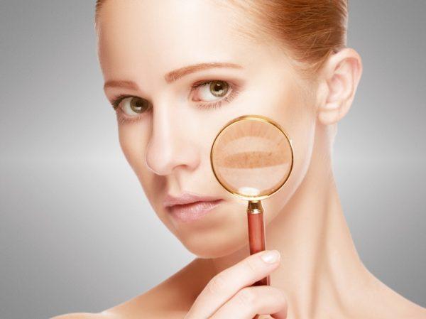 Hautverfärbungen- was sollten Sie tun?